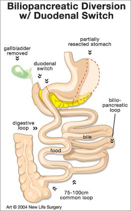Biliopancreatic Diversion Duodenal Switch Diagram